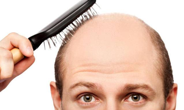 Caduta dei capelli – Calvizie