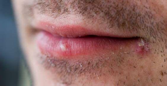 Herpes labiale: cause e rimedi